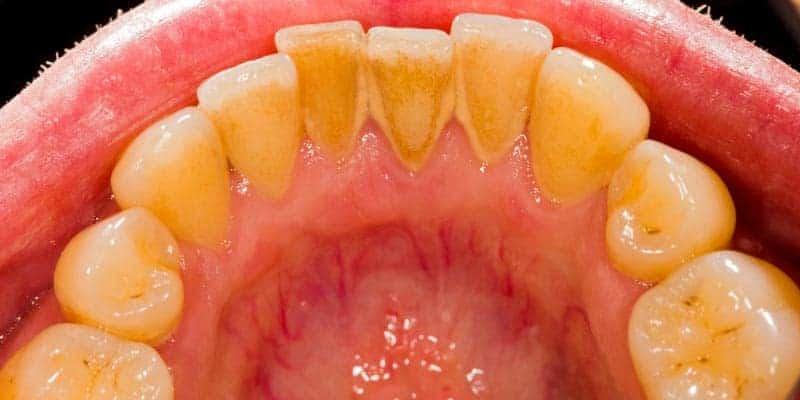 diş taşı nasıl oluşur