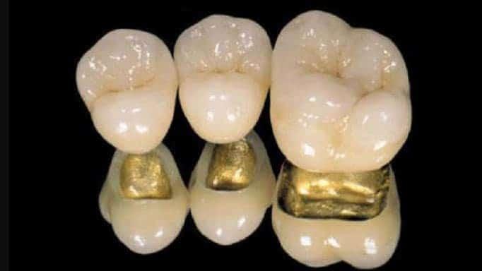 altın porselen diş