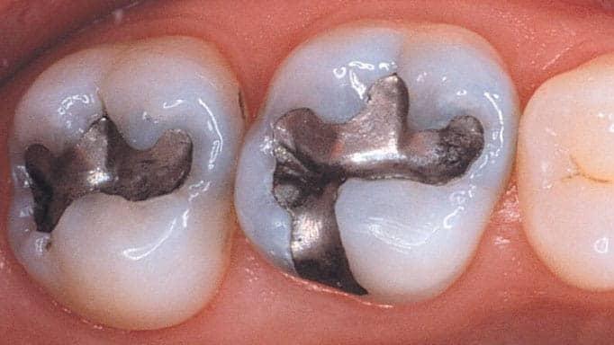 amalgam diş dolgusu