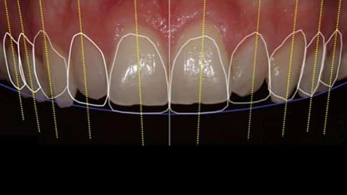 diş estetiği nedir