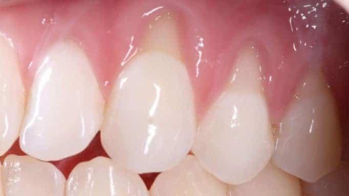 diş eti çekilmesi neden olur
