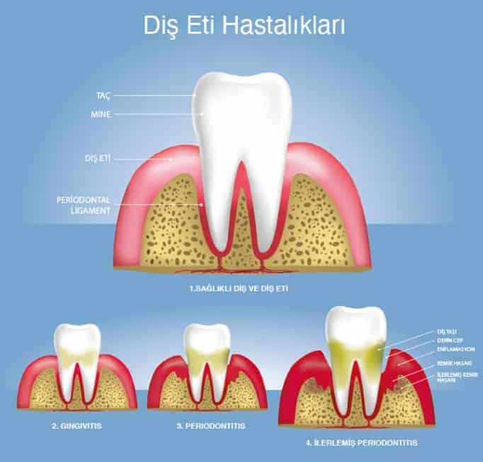 diş eti çekilmesi nedir