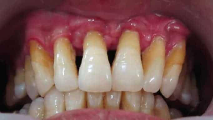 diş eti iltihabı tedavisi