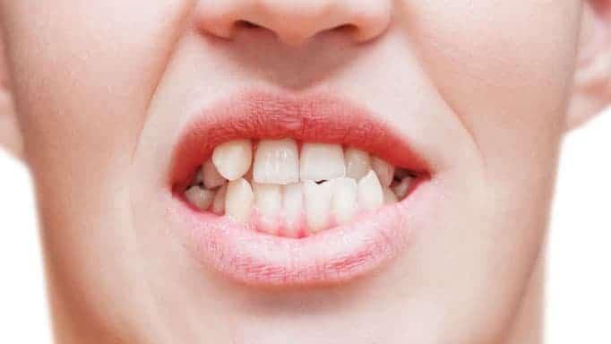 diş teli neden takılır