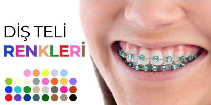 diş teli renkleri