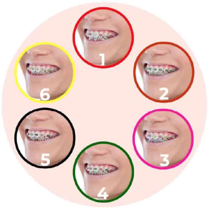 diş teli renkli