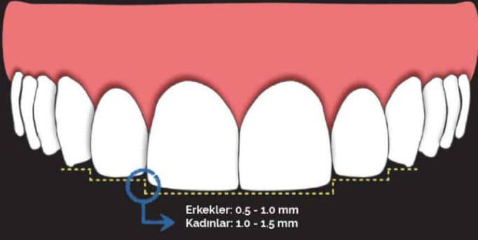 diş ve gülüş estetiği