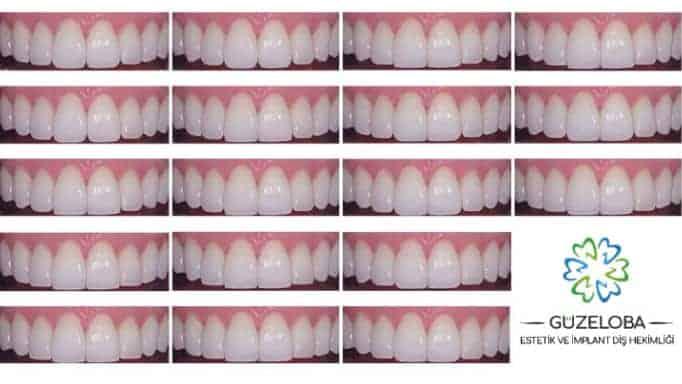 estetik diş modelleri