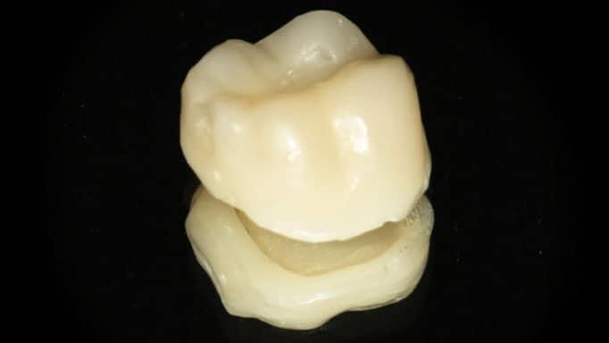 geçici kaplama diş