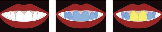 diş oranları
