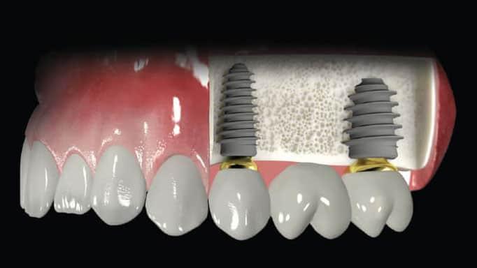 implant köprü