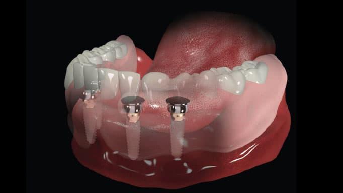 implant üstü protez