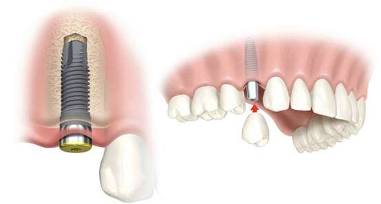 implant vidalı diş
