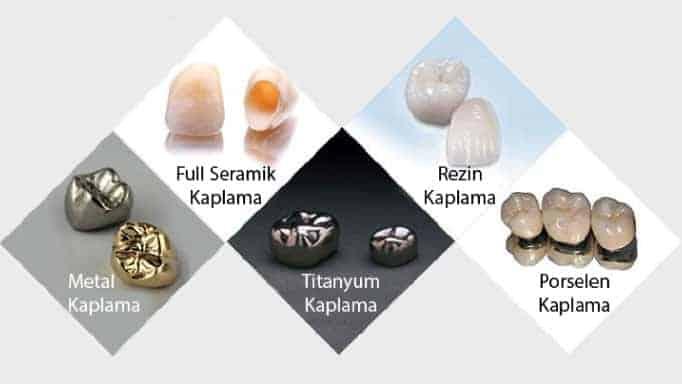 kaplama diş çeşitleri