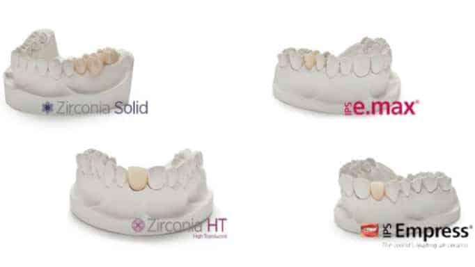 kaplama diş