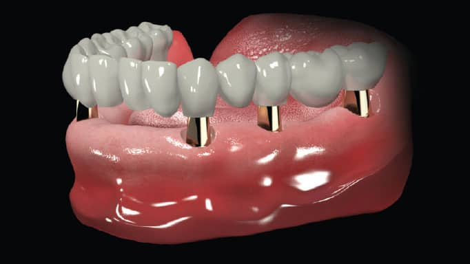 komple implant diş