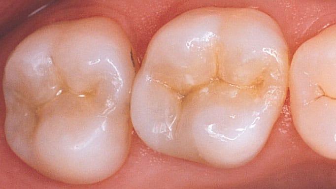 kompozit diş dolgusu