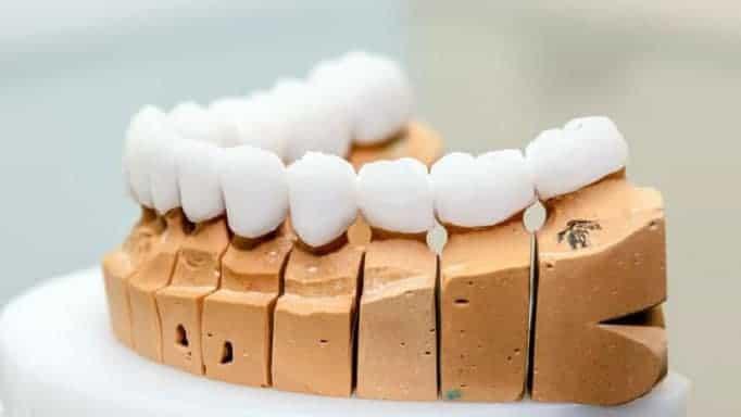 köprü diş