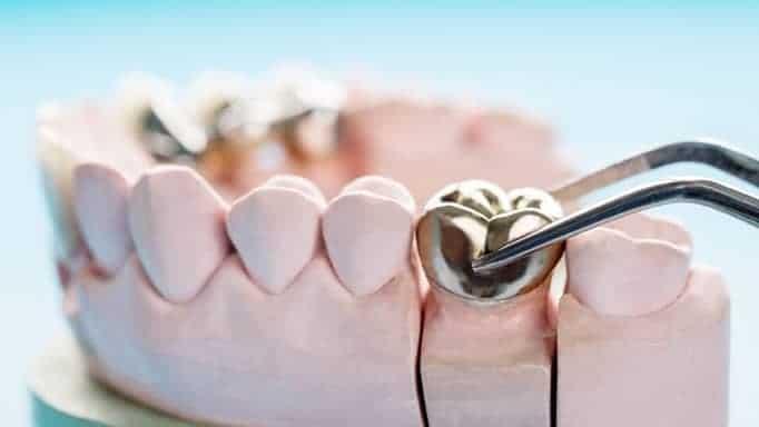 metal kaplama diş