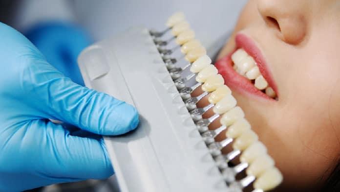 ön diş dolgusu ne kadar dayanır