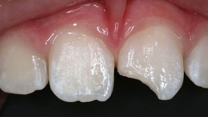 ön diş dolgusu