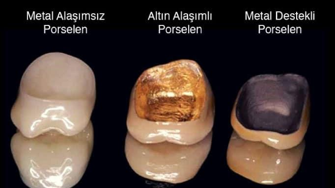 porselen diş çeşitleri