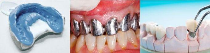 porselen diş yapımı