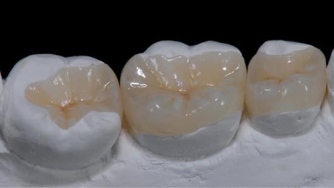 porselen diş dolgusu