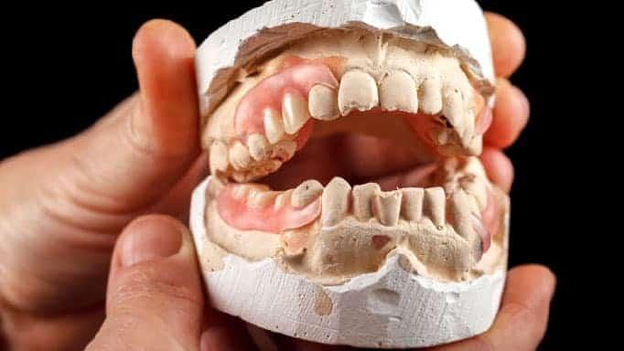 protez diş nasıl takılır