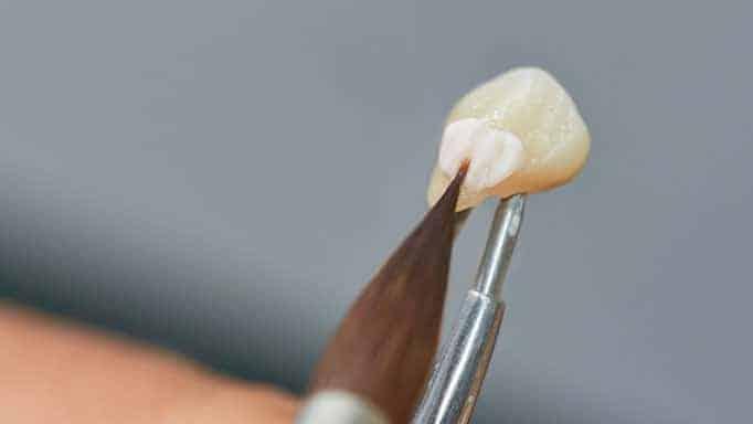 lamine kaplama nasıl yapılır