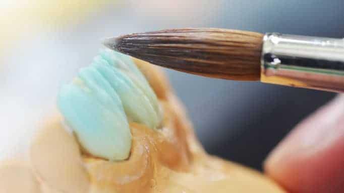 lamine diş kaplama