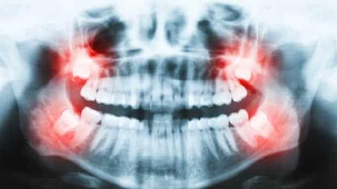 yirmilik diş kaç tanedir