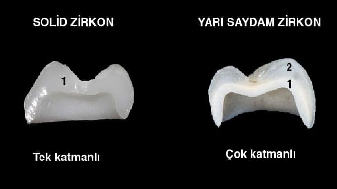 zirkonyum kaplama diş