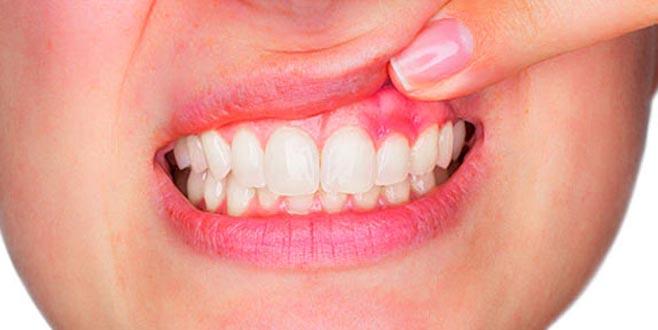 diş apsesi nasıl patlatılır