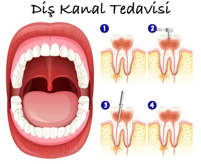 Diş Kanal Tedavisi Ne Kadar Sürer