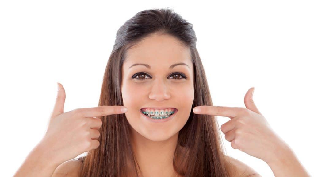 Diş teli takıldıktan sonra dişler ne zaman düzelmeye başlar