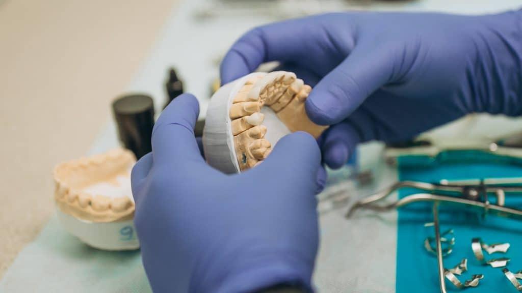 zirkonyum porselen kaplama diş yapım aşamaları