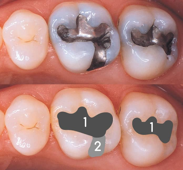 diş dolgusu fiyatları