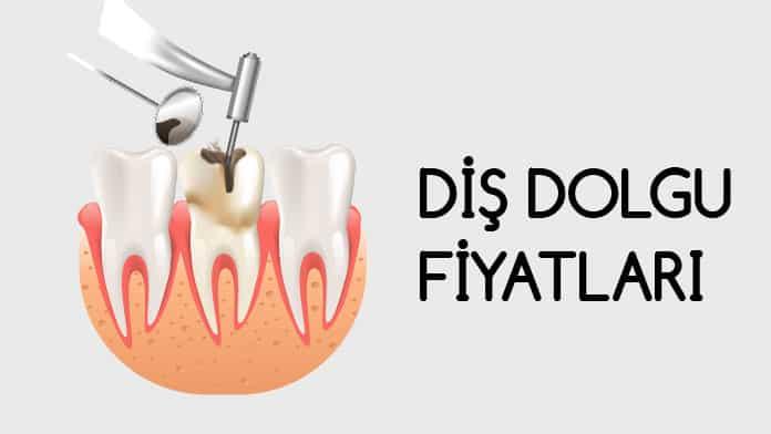 diş dolgu fiyatları