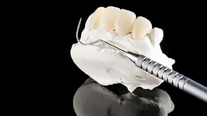 köprü diş fiyatları
