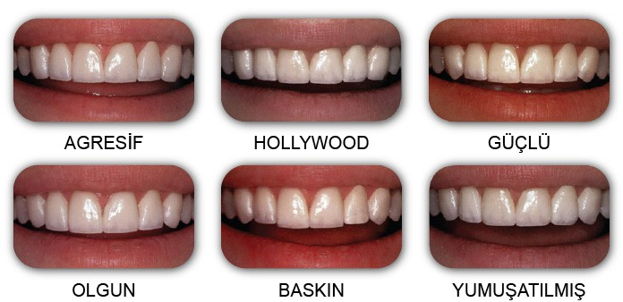 erkek diş modelleri
