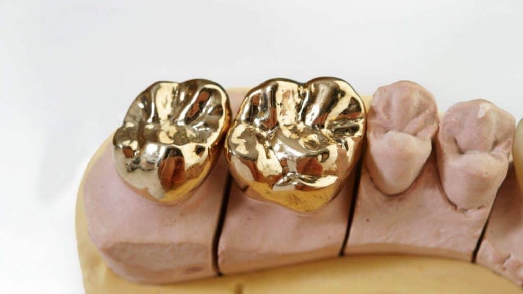 Altın diş kaplama