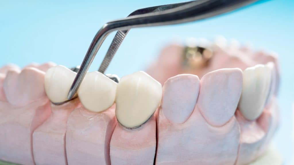 implant mı köprü mü