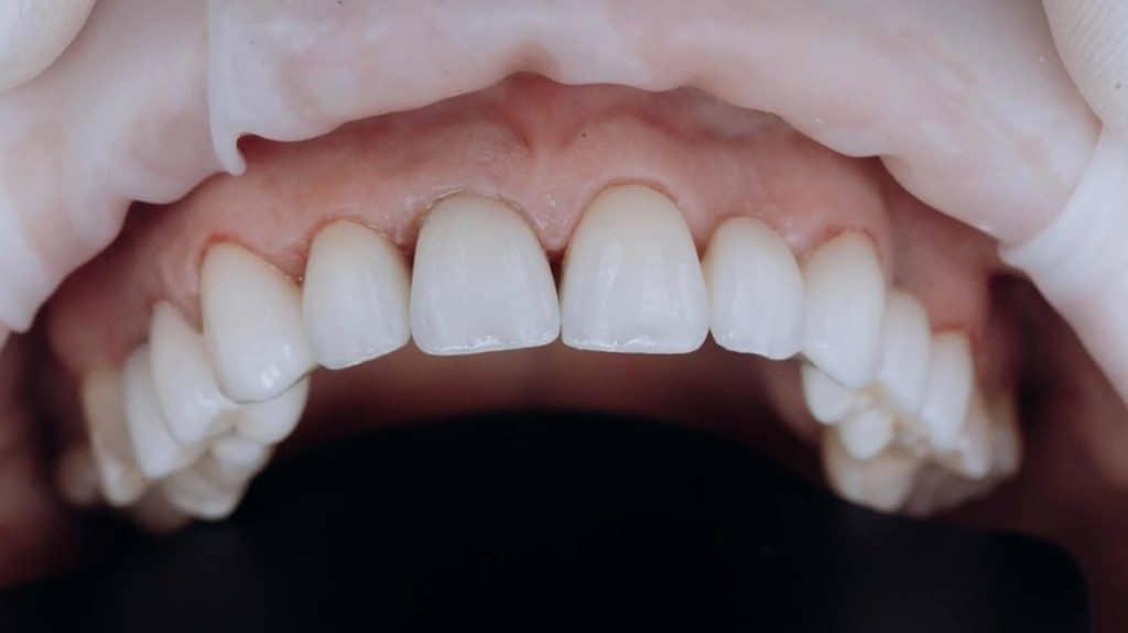 Kaplama diş öncesi sonrası