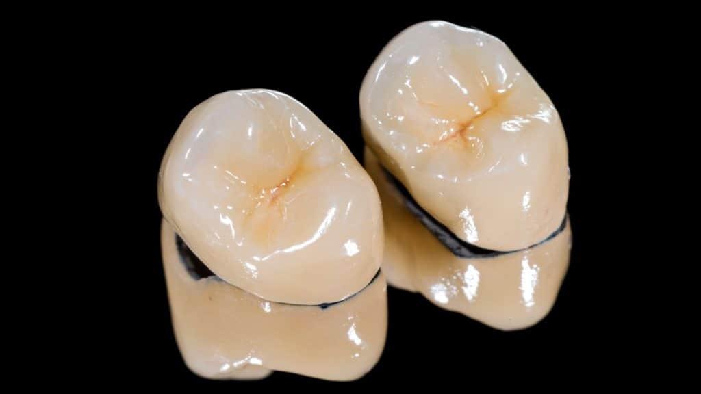 metal destekli porselen diş
