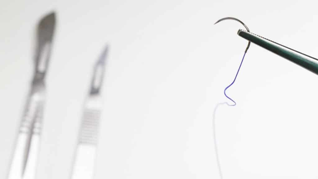 implant dikişleri kaç gün sonra alınır
