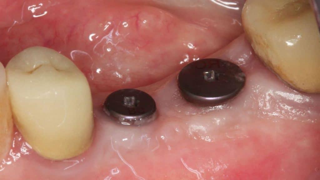 implant iyileşme başlığı